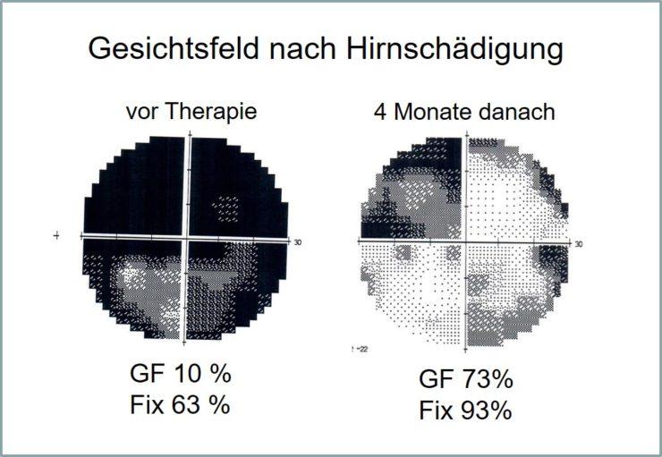Gesichtsfeld des Patienten Sebastian A. vorher und nachher